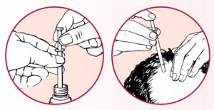 Die Tropfpipette erleichtert die Behandlung mit dem Haarwachstumsmittel ALOPEXY®